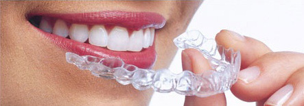 Invisalign Treatment Process