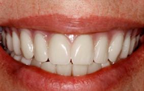 Patient's Free Dentures